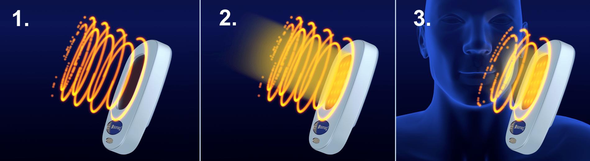 aplikátor magnetoterapie polarizované světlo