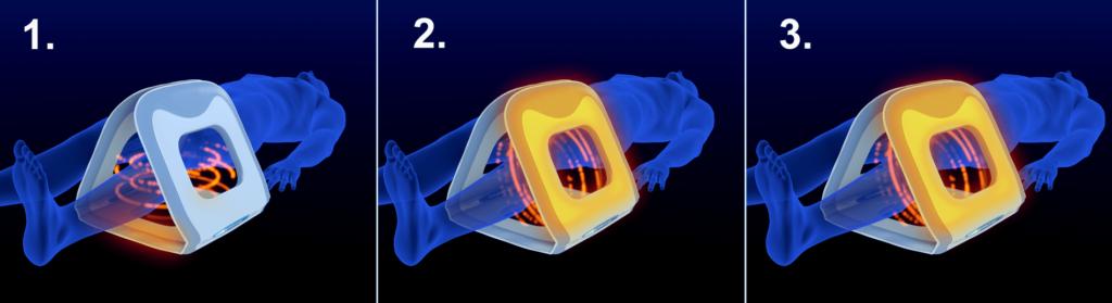 magnetoterapie-aplikator-3d-v-leze