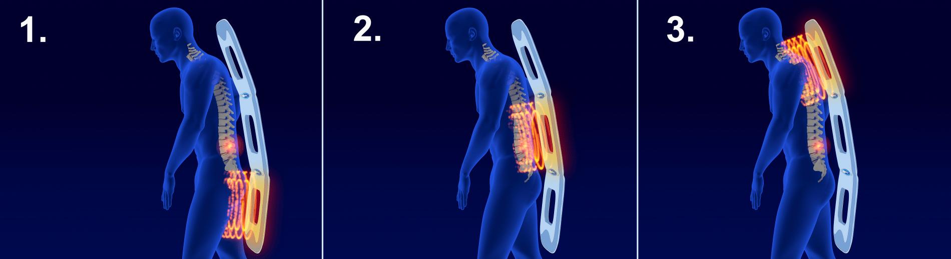 magnetoterapie aplikátor 3D ve stoje